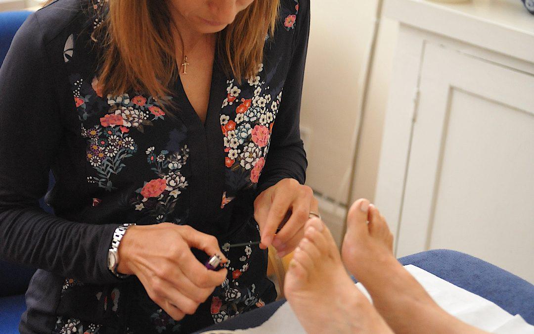 Autumn acupuncture to prevent hay fever
