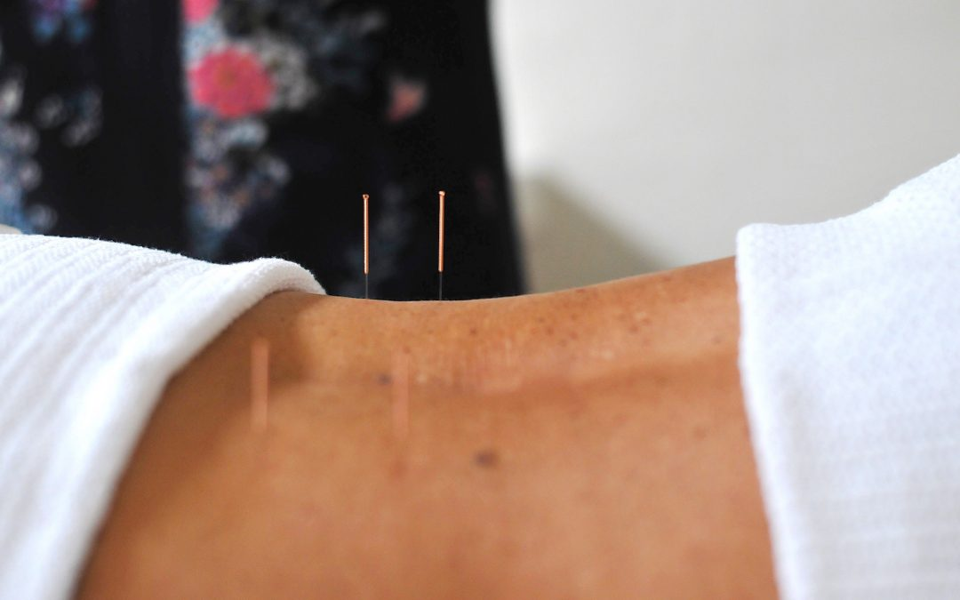 Acupuncture and Treating Anxiety